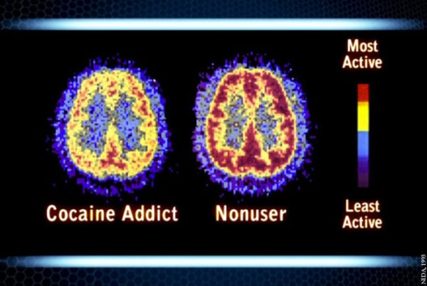 Drug Addiction Services